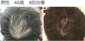 男性 46歳 4回治療